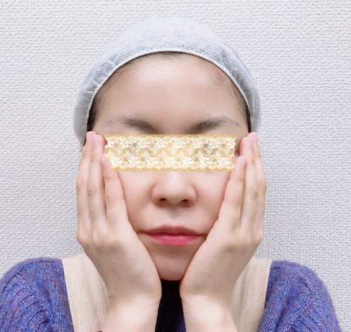 頬のハンドプレスの画像